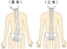 骨盤の歪みは全身に影響を及ぼします